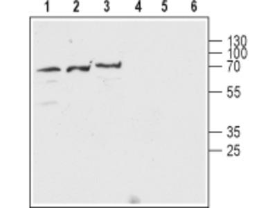 Anti-Nicotinic Acetylcholine Receptor beta2 (CHRNB2) (extracellular) Antibody