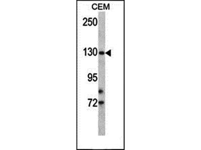 TMPRSS9 antibody