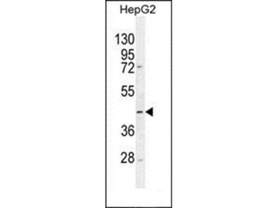 TMLHE antibody