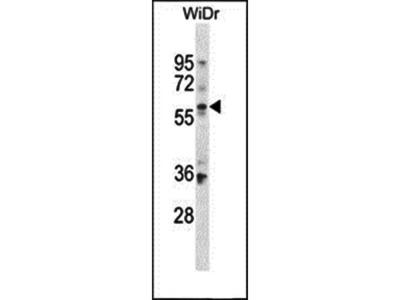 BCMO1 antibody