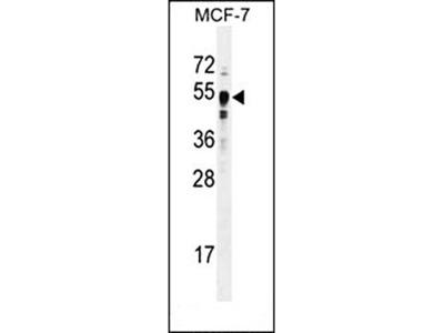 SET7 antibody