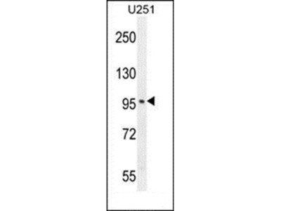 SOBP antibody
