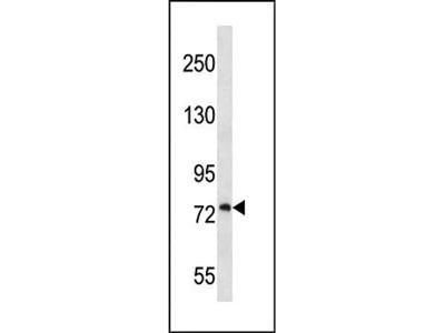 PLOD1 antibody