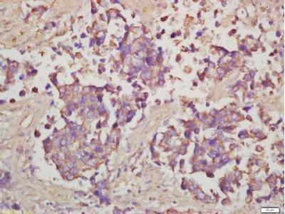 S6 Ribosomal Protein (phospho-Ser240/244) antibody
