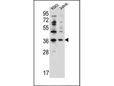 PPP1R3G antibody