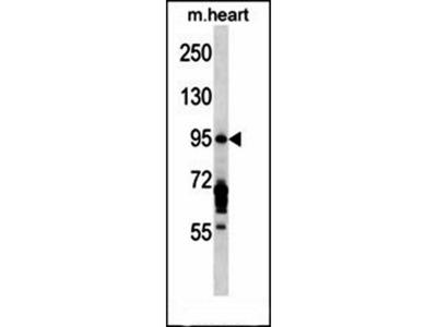EXOC6B antibody