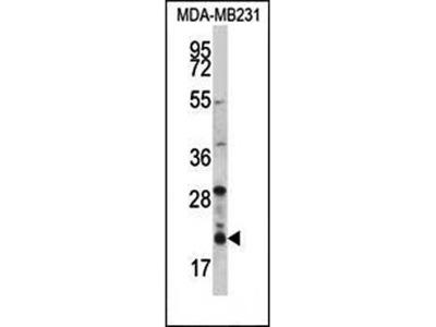 HIST1H1D antibody