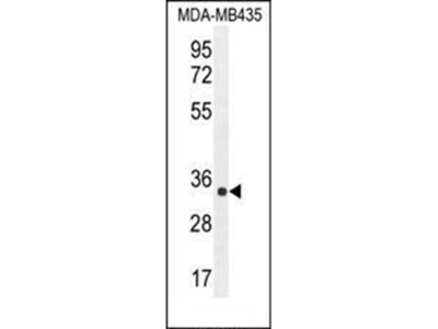 ALKBH6 antibody
