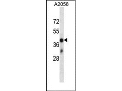 OR4D6 antibody