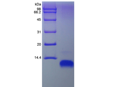 Human CCL22 protein