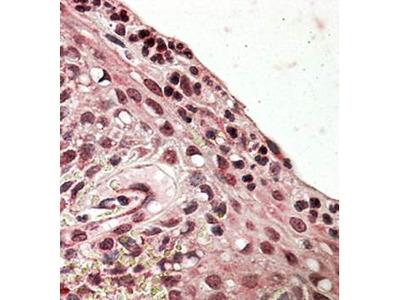 PRDM1 antibody