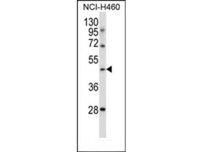 TLE6 antibody
