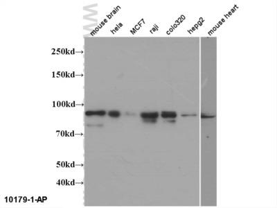 Mitofilin antibody - KD/KO Validated