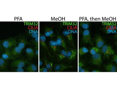 TRIM32 antibody - KD/KO Validated