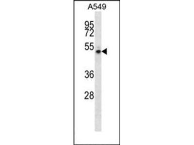 NUDCD1 antibody