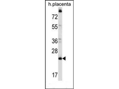 CCDC117 antibody