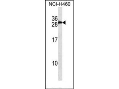 S100B/S100 antibody
