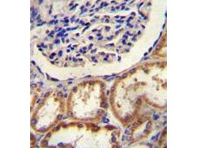 HtrA1 antibody