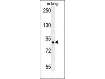 LRRC4B antibody