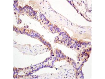 Glucose 6 phosphatase alpha antibody