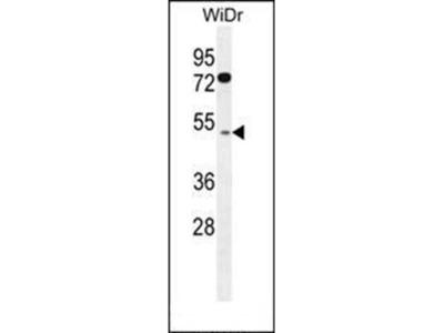 RMD1 antibody