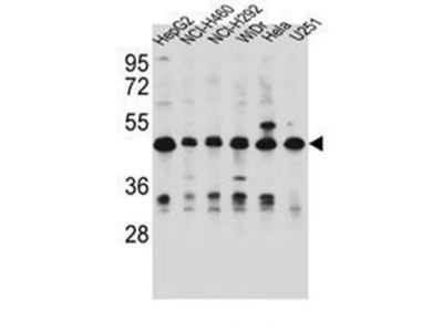 DUS1L antibody