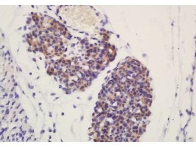 ATG4D (phospho-Ser467) antibody