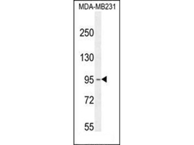 KCNT2 antibody
