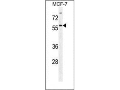 ZNF165 antibody