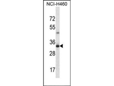 TBC1D21 antibody