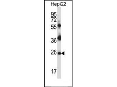Mouse Tp53rk antibody