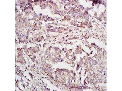 IL22 Receptor alpha 2 antibody