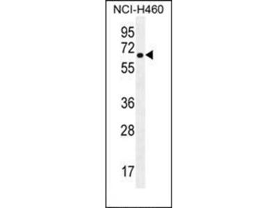 CHRND antibody