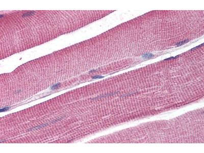 DCLRE1A antibody