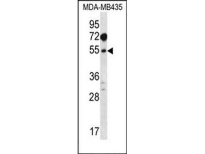 MAT1A antibody