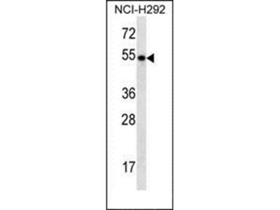 TBC1D3E antibody