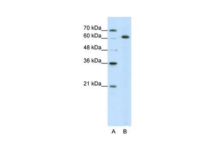 SNRP70 Antibody