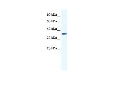 KCNK3 Antibody