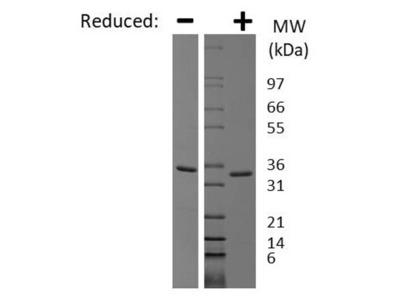 Recombinant Human Myostatin Propeptide Protein