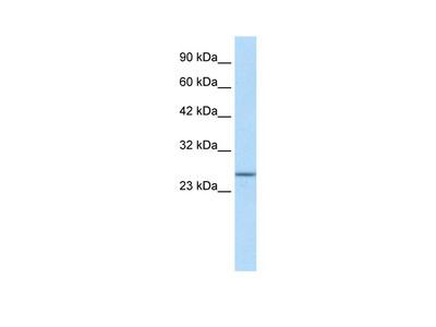 SOX14 Antibody