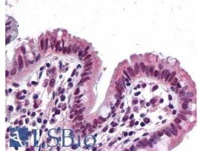SMARCB1 / INI1 Monoclonal Antibody