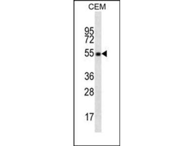 CD4 anibody