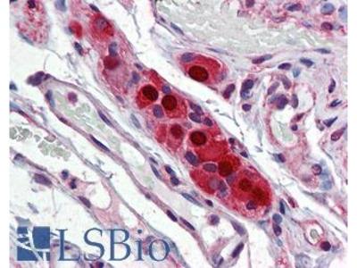 ELAVL4 / HuD Monoclonal Antibody