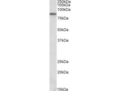 ALDH18A1 Antibody