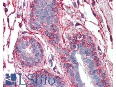 PAK1 Monoclonal Antibody