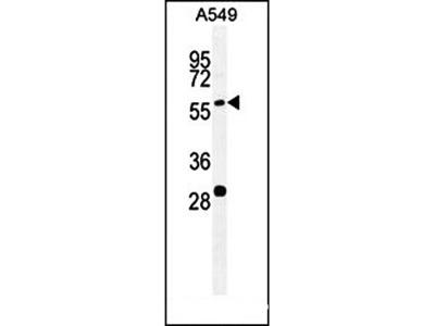PALM3 antibody