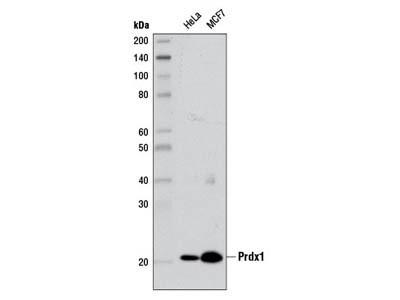 Prdx1 (D5G12) Rabbit mAb