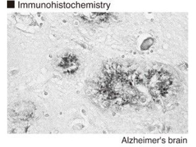 Anti-Apolipoprotein E4 (Human) mAb