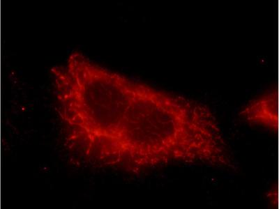 hamartin antibody