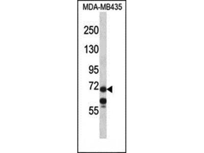 MID1 antibody
